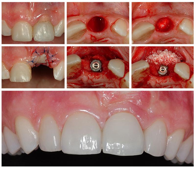 лунку зуба после удаления